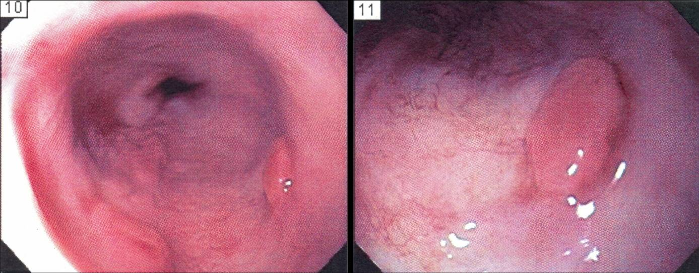 Barrett's nodules with high grade dysplasia. Click to Enlarge