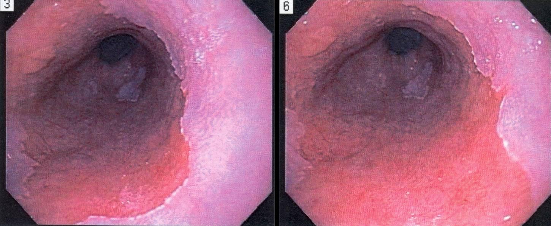 barrett u0026 39 s esophagus treatments